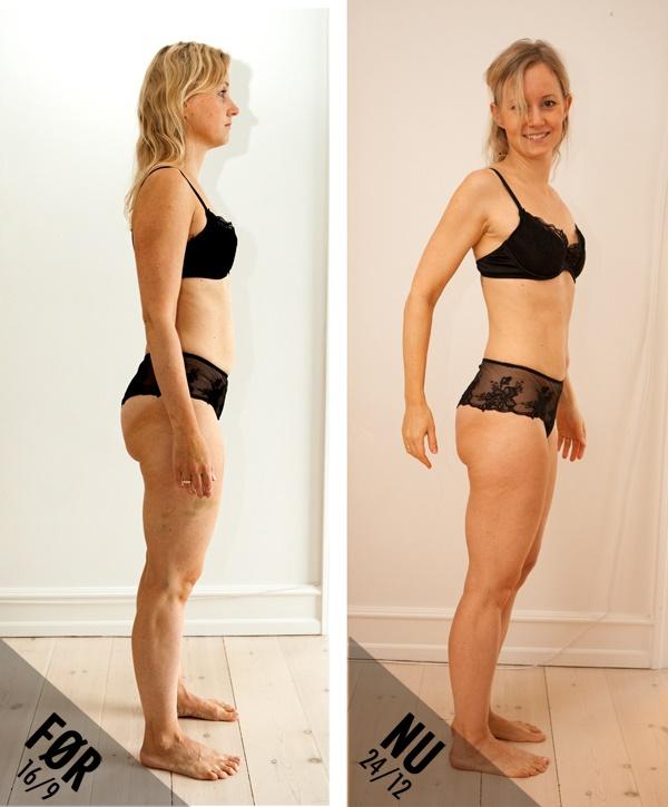 neger hore implantater før og efter