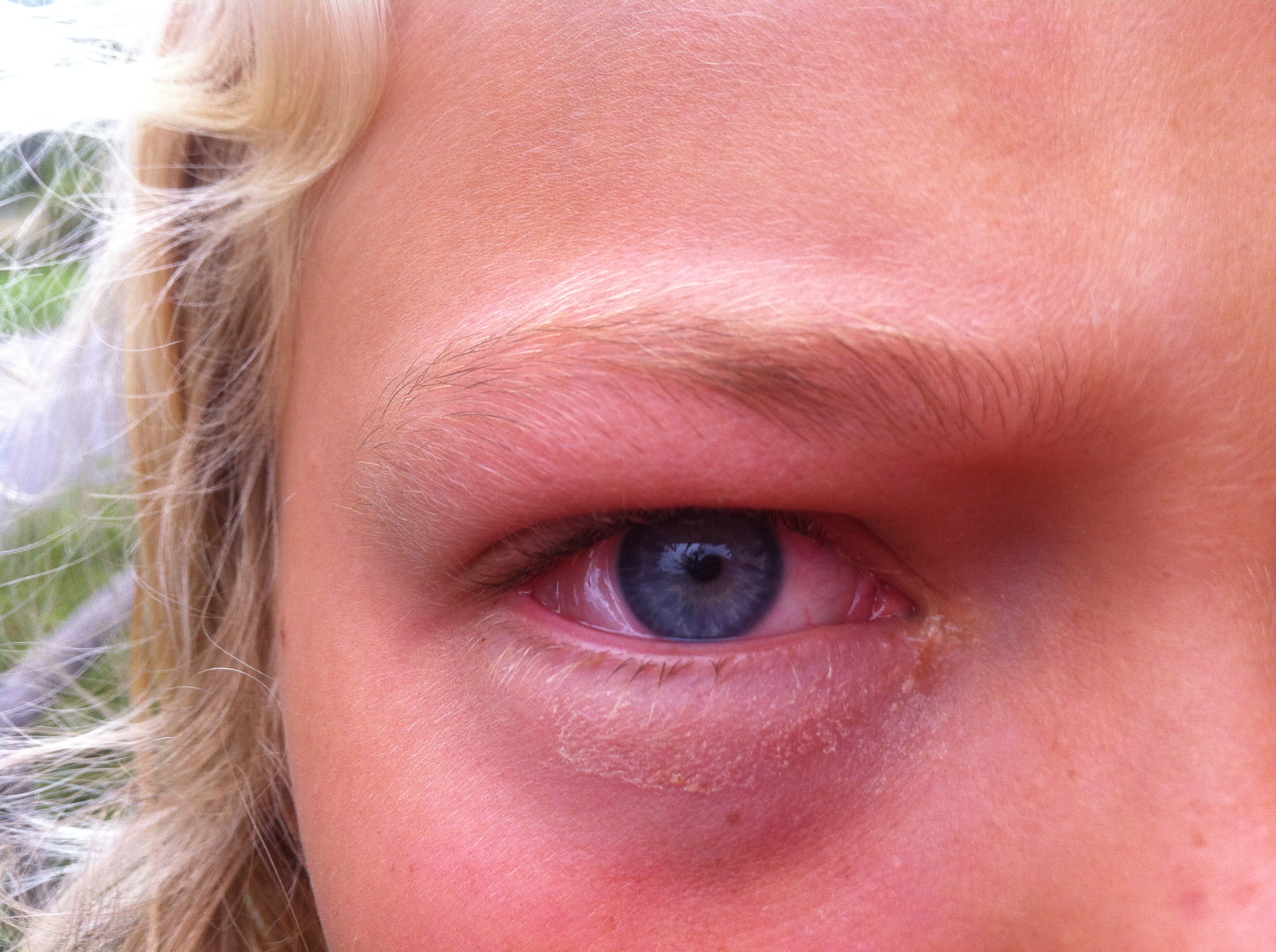 høfeber øjne