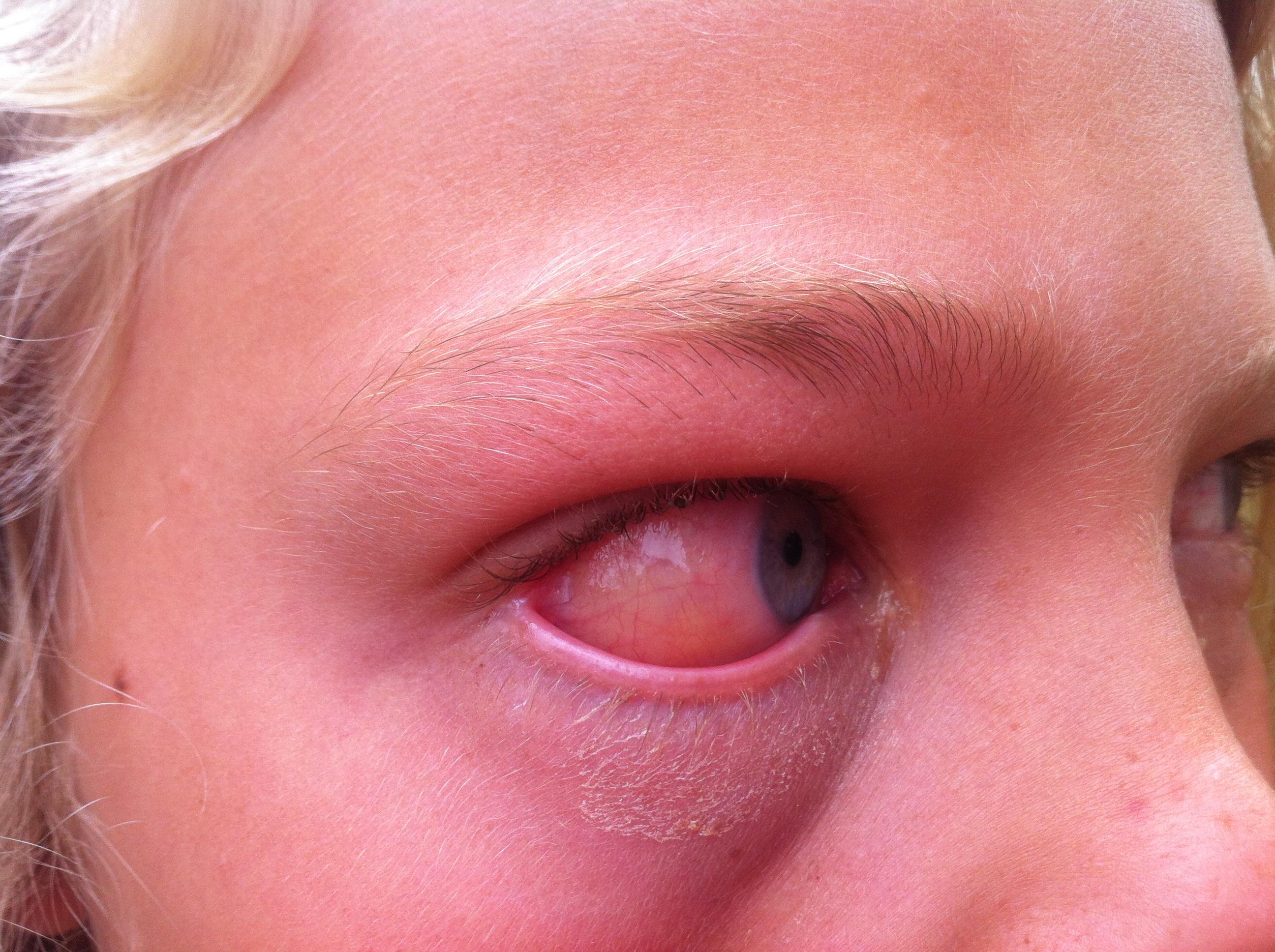 allergi skimmelsvamp